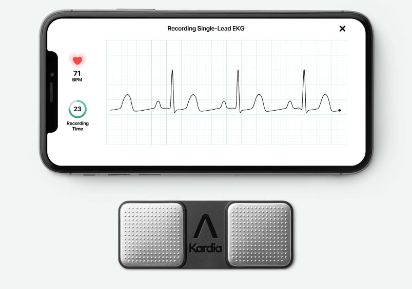Kardia Mobile paired with an iPhone taking an EKG